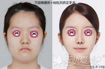 上海愉悦美联臣地包天矫正手术案例