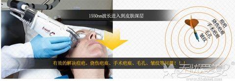韩国童颜FAXEL1550疤痕激光的优点