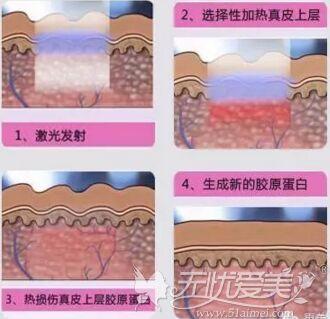北京丽都激光祛痘