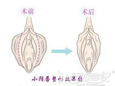 阴唇缩小手术的原理