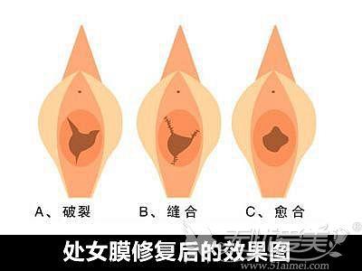 处女膜修复过程和效果