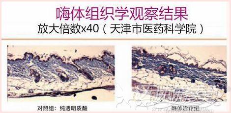 梅州曙光嗨体去颈纹