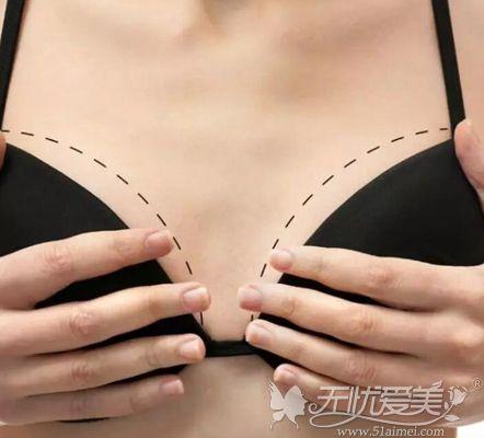 徐州华美李亚飞假体隆胸只需7800元起即可收获柔软自然美胸