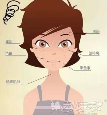 女性面部衰老皮肤出现各种色斑