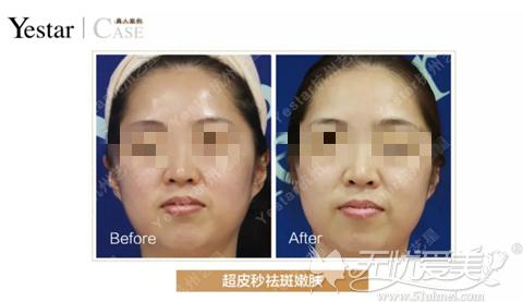 杭州艺星整形祛斑真人案例
