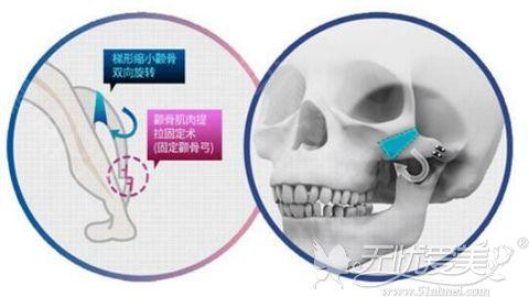 上海华美三维颧骨缩小术