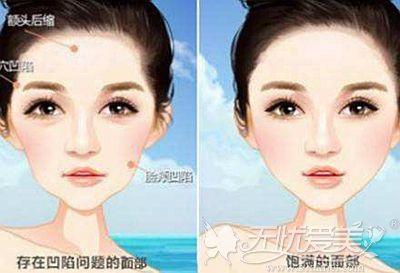 面部凹陷和饱满的区别