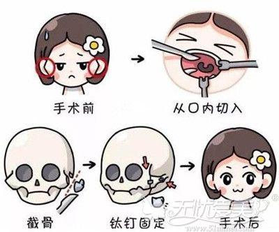 颧骨内推手术的原理