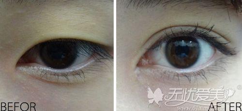 韩国碧夏肿泡眼做双眼皮手术案例
