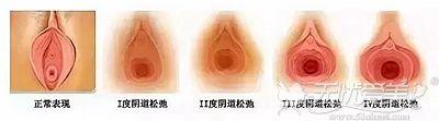 后方膛圆盖术可以改善重度阴道松弛问题