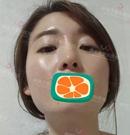 在韩国伊美芝找金成南做完下颌角整形术后从大妈变少女