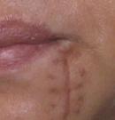案例分享:50岁阿姨几十年的嘴角疤痕竟然在武汉正璞治好了术前
