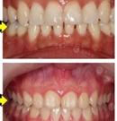 一口牙改变一张脸 她在重庆华美亲身实践牙齿矫正来证明术后