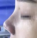 """小姐姐在黑诊所做了个""""假鼻子""""半年后找海峡李希军修复术后"""
