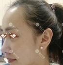 重庆华美治疗发际线后移有一套 这个小姐姐发出治疗照片了术前
