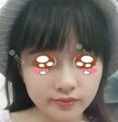 重庆华美治疗发际线后移有一套 这个小姐姐发出治疗照片了术后