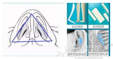 成都美绽美鼻综合隆鼻手术优势