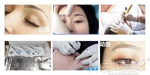 北京美莱新生修复眉技术