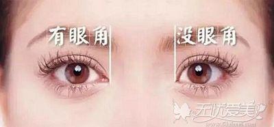 开内眼角和不开内眼角的区别