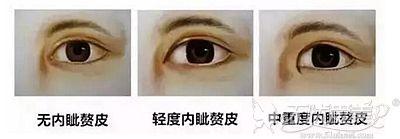 邯郸京美开内眼角可以让眼睛更有神