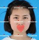 原来在菏泽悦美割双眼皮有这么多好处 变美的不仅是眼睛术前