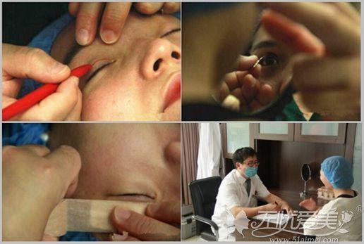 菏泽悦美张坤医生给顾客做双眼皮手术