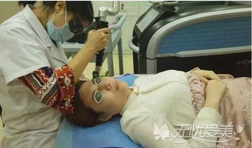 皮秒激光祛斑治疗过程