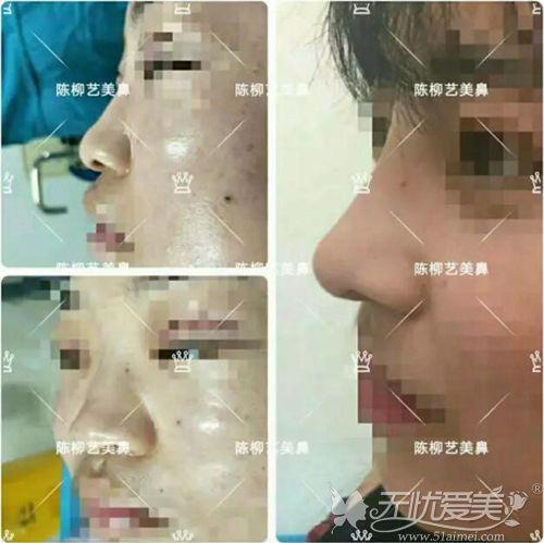 陈柳艺隆鼻真实案例