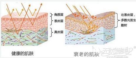 预防颈纹要做好防晒