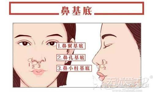 沈阳安娜宝士鼻基底填充改善凸嘴