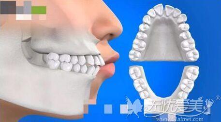 牙齿原因造成的凸嘴