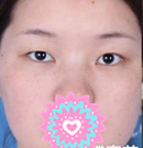 台州艺星现场直击:看她割双眼皮后如何逆袭男神收割机术前