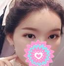 台州艺星现场直击:看她割双眼皮后如何逆袭男神收割机术后