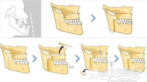 改脸型手术原理