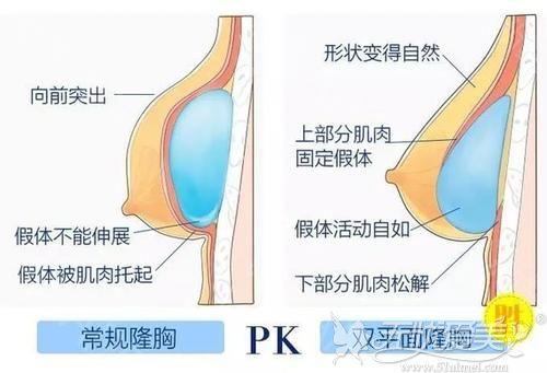 王驰医生双平面丰胸的优势