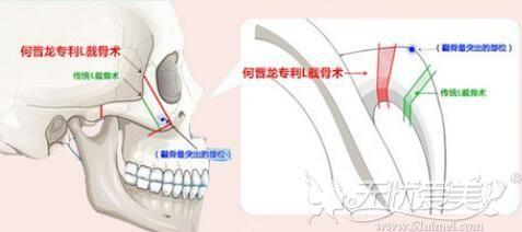 上海时光3D颧骨旋转截骨