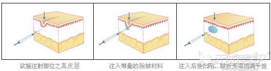 精准分层注射法原理