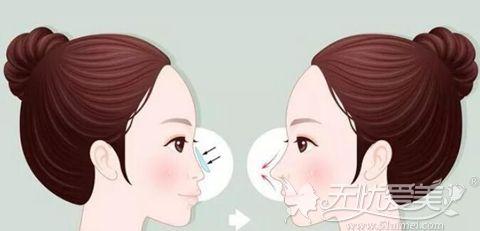 肋软骨隆鼻的适合人群