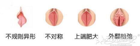 上海华美小阴唇肥大矫正