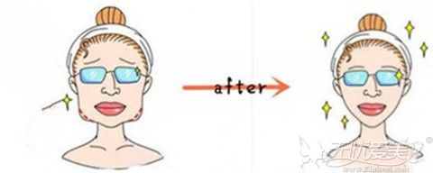 去除下颌角手术后效果对比