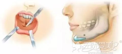 隆下巴手术过程