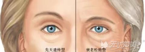 先天性遗传眼袋和后天衰老眼袋的区别