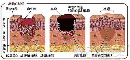 疤痕产生的主要原因