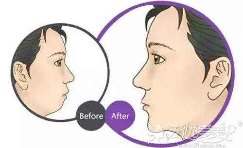下巴对脸型的重要性
