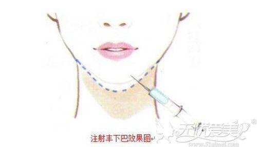 玻尿酸丰下巴的效果