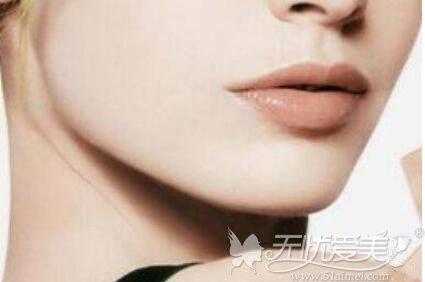 重庆华美下颌角整形