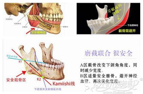 重庆华美磨截联合下颌角成形术