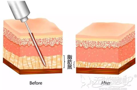 吸脂可以有效的改善多余脂肪细胞