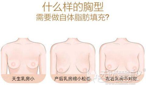自体脂肪隆胸的优势