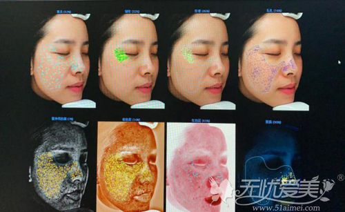 长沙雅美VISA皮肤检测效果